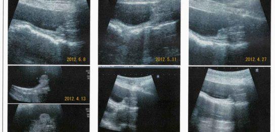 犬の膀胱がん(移行上皮癌)にコルディを投与し腫瘍が縮小した症例